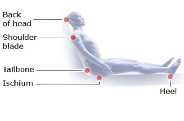 the development of the pressure ulcer in the medical practices